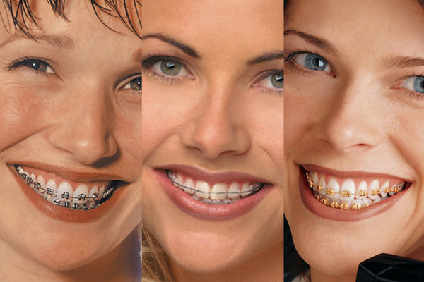 Torqueontrol System modern brackets Orthodontist Zug Switzerland Orthodontics Zug modern dentistry health care